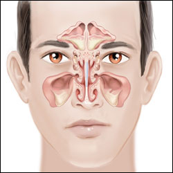 Thousand Oaks, Simi Valley, Oxnard, & Camarillo, CA sinus surgery